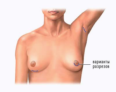 Операция по увеличению груди сделала