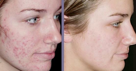 Маски для проблемной кожи лица с голубой глины