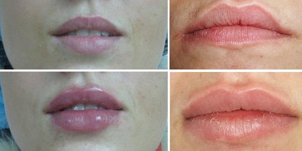 Увеличения губ на основе гиалуроновой кислоты