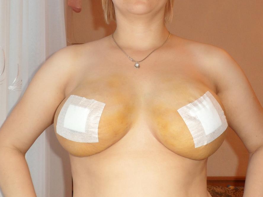 Маммопластика фото