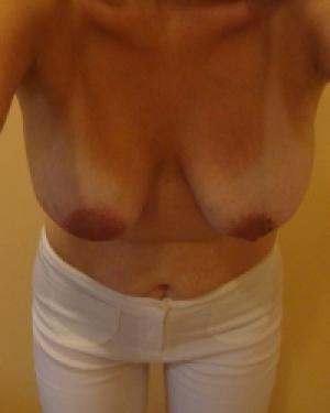 Беременность, роды, кормление и как следствие - обвисшая грудь с.