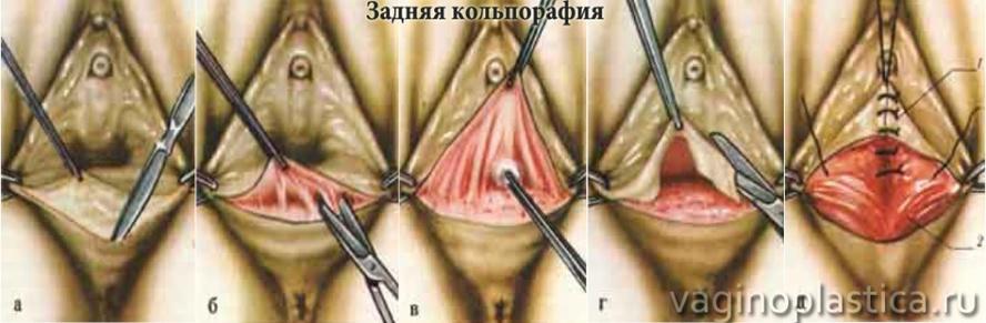 Операция по сужению влагалища для восстановления остроты ощущений