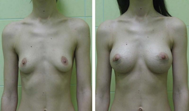 Имплант груди 350 мл это какой размер груди