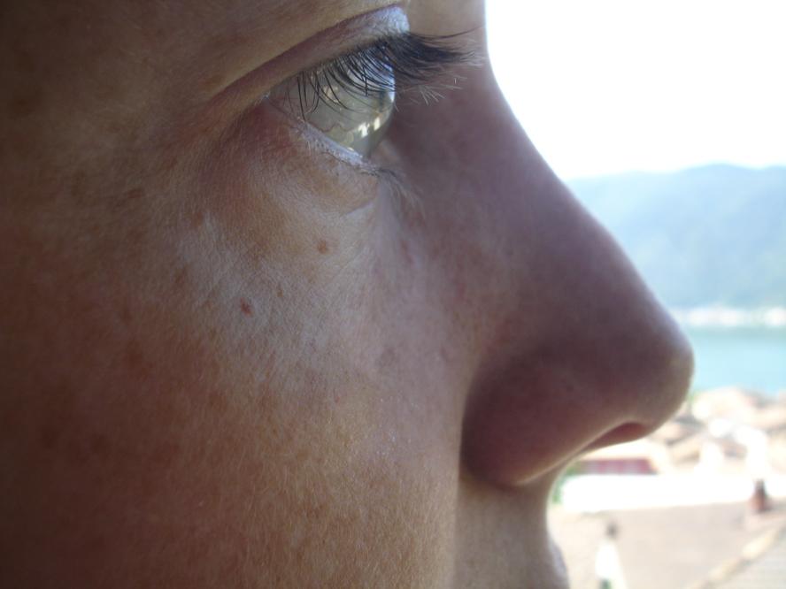 Бородина до и после ринопластики фото