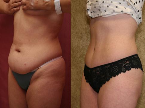 Что надо сделать чтобы похудеть? tvoydar