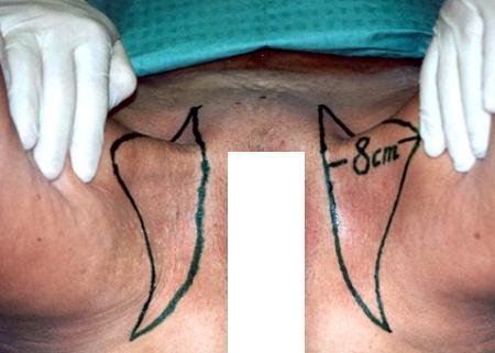 Из мужчины в женщину фото гениталий после операции