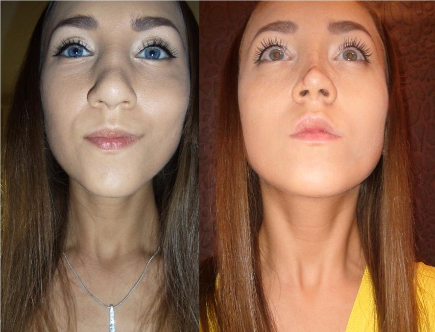 пластика носа картошкой до и после фото днем рожденья