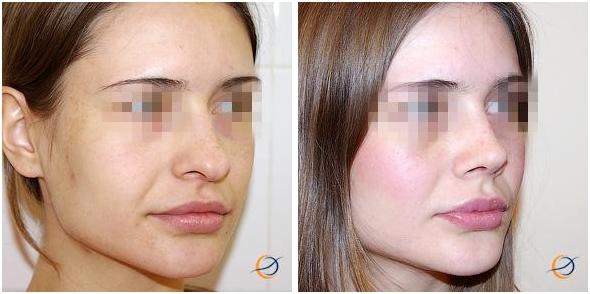Ринопластика носа тюмень