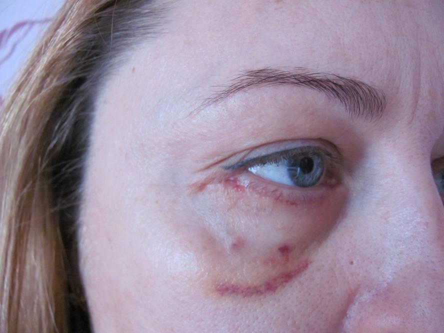 Шрамы после блефаропластики фото