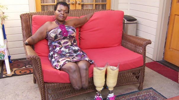 рук ног и без ампутанты женщины