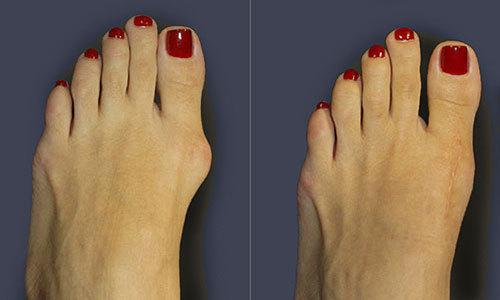Как убрать шишку на ноге операция