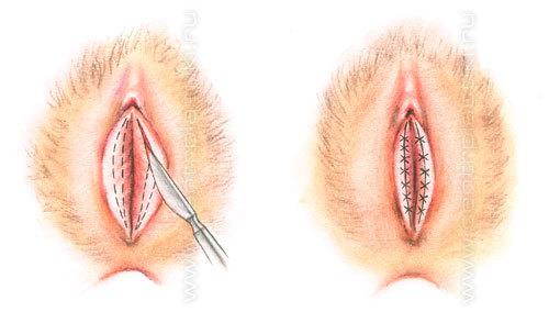 рис.1. схема ушивания раны