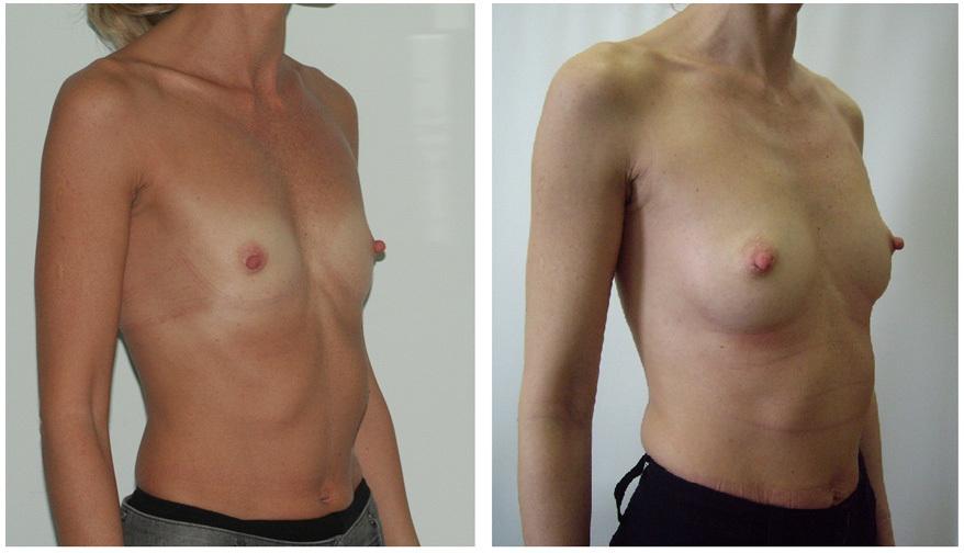 Я хочу сделать операцию по увеличении груди