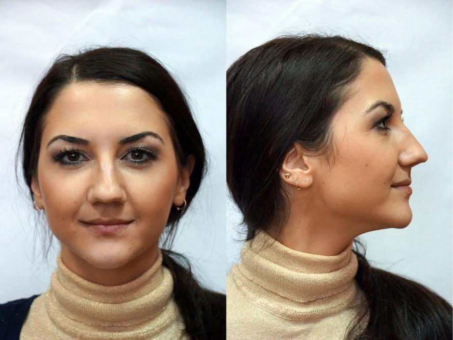Неудачные пластических операции на нос