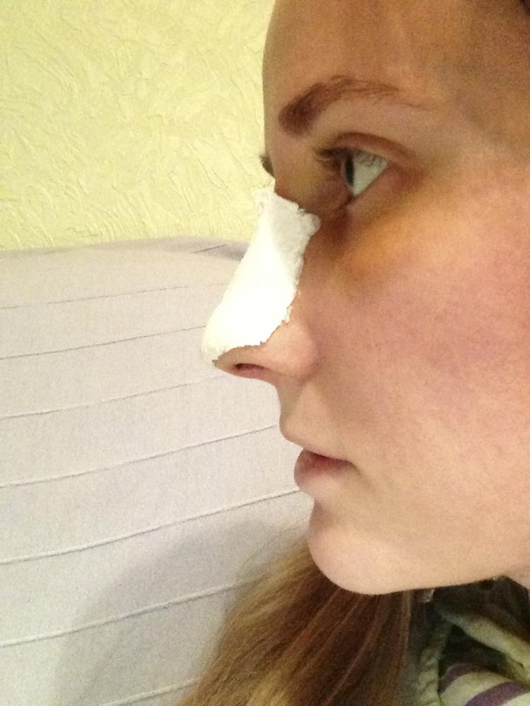 Восстановление носа после ринопластики