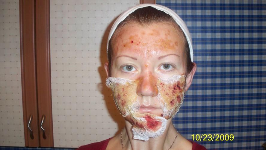 Крем отбеливающий волосы на лице