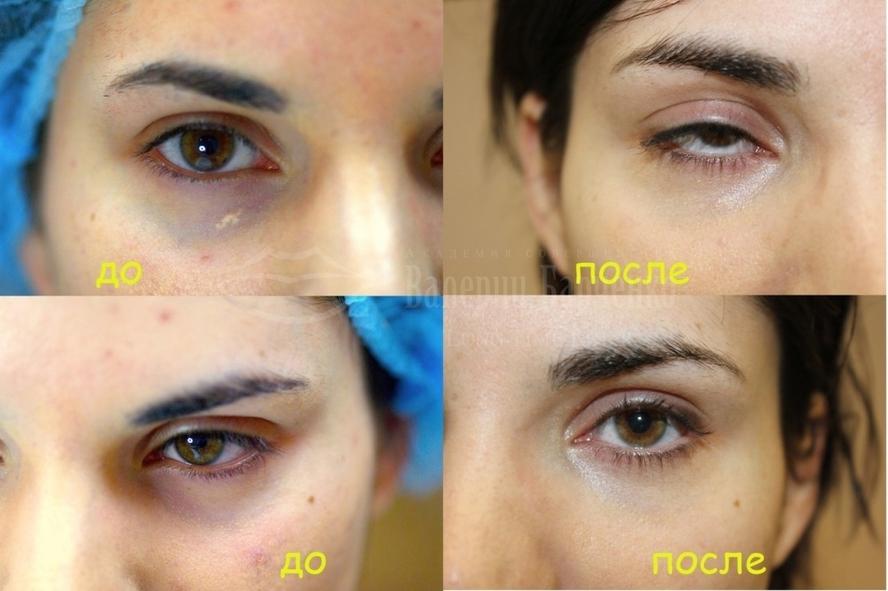 Как пластическая хирургия убирает синяки под глазами основы пластической хирургии и трансплантологии.пластическая эстетическая хирургия.микрох