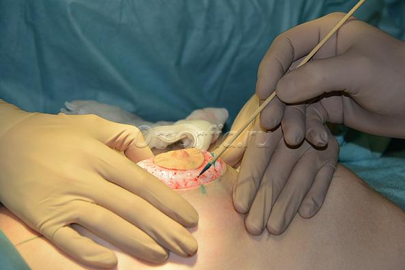 Операция по увеличению грудей стоимость москва