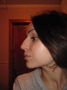 фото большие носы