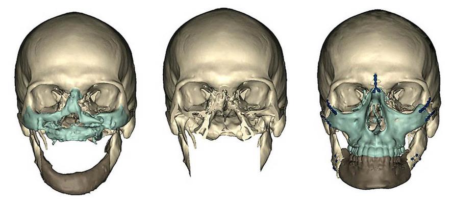Схема пересадки костей и зон