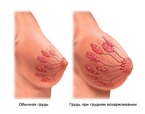 увеличить грудь без операции быстро