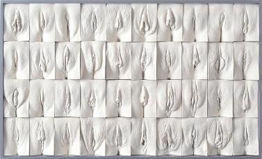 фото разновидность половых губ