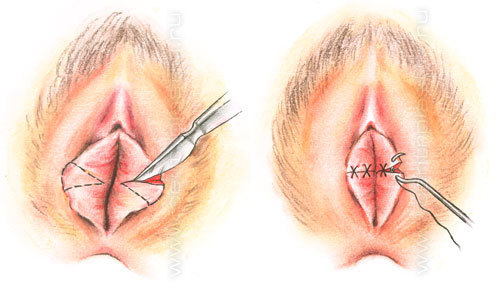 фото женские половые органы
