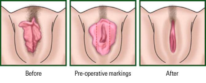 Женские половые губки