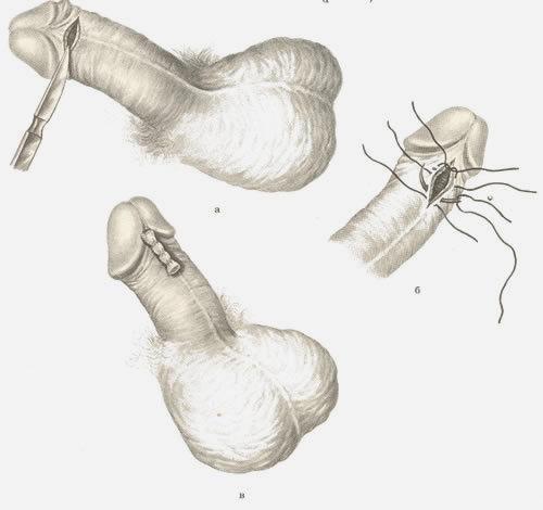 Уздечкой называется маленький участок кожи, соединяющий нижнюю часть головки члена и нижнюю часть крайней плоти.
