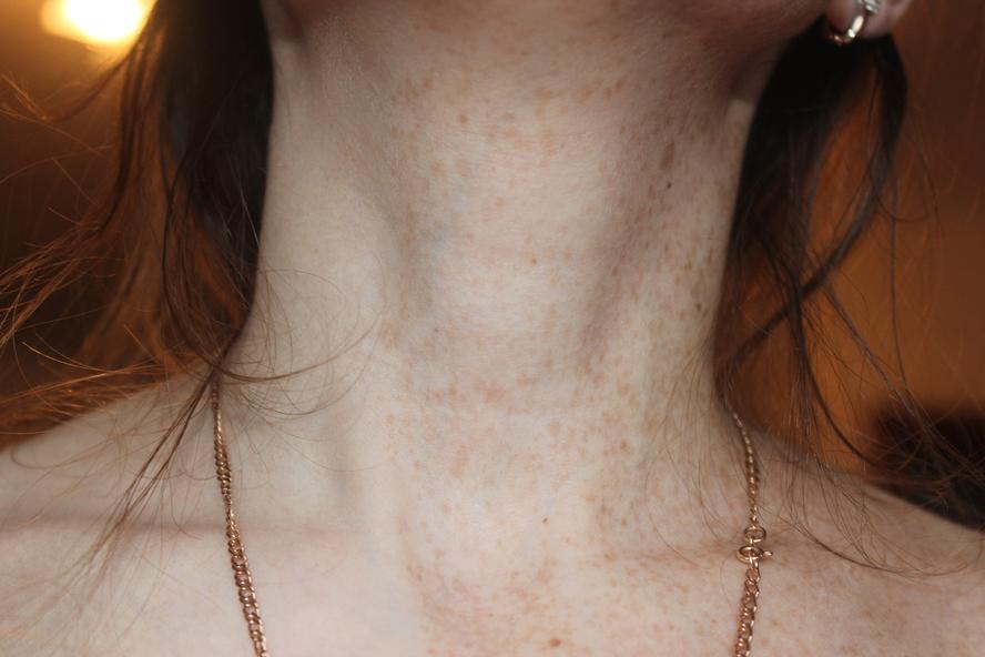 синяки на шее