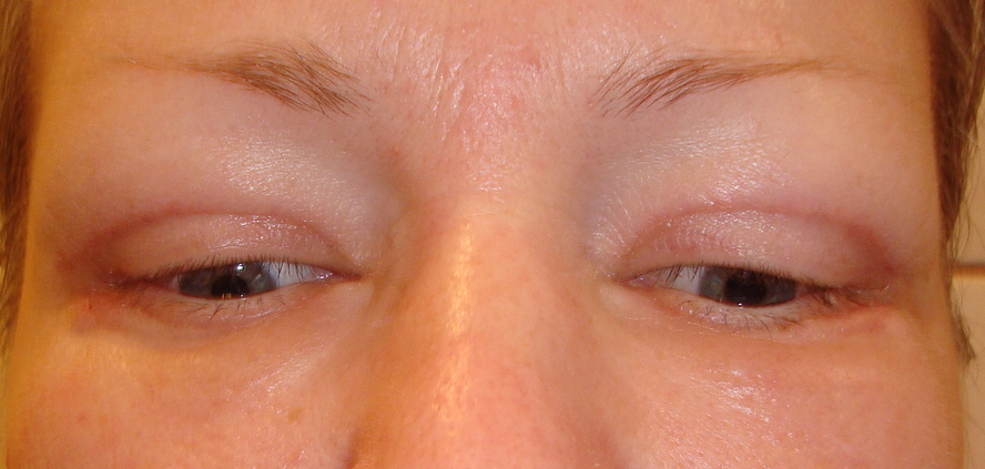 Красные глаза после блефаропластики