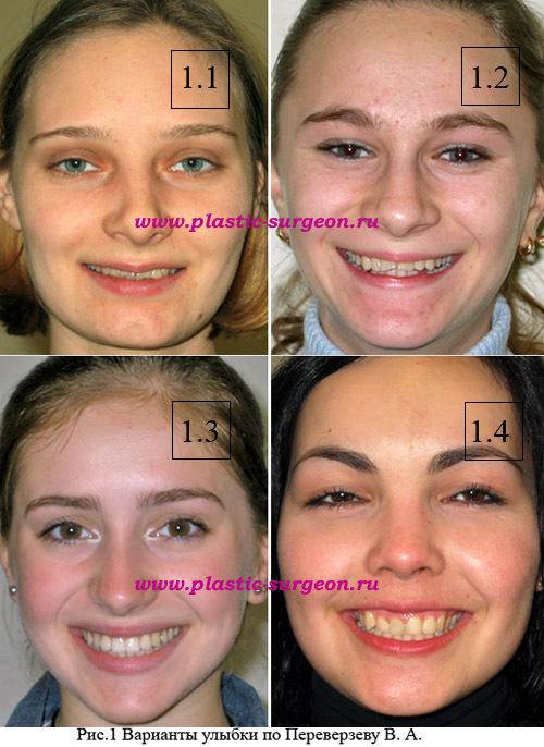 улыбки звезд до и после виниров