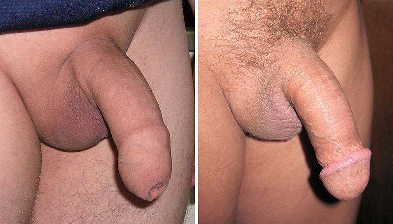 Что такое пенис фото