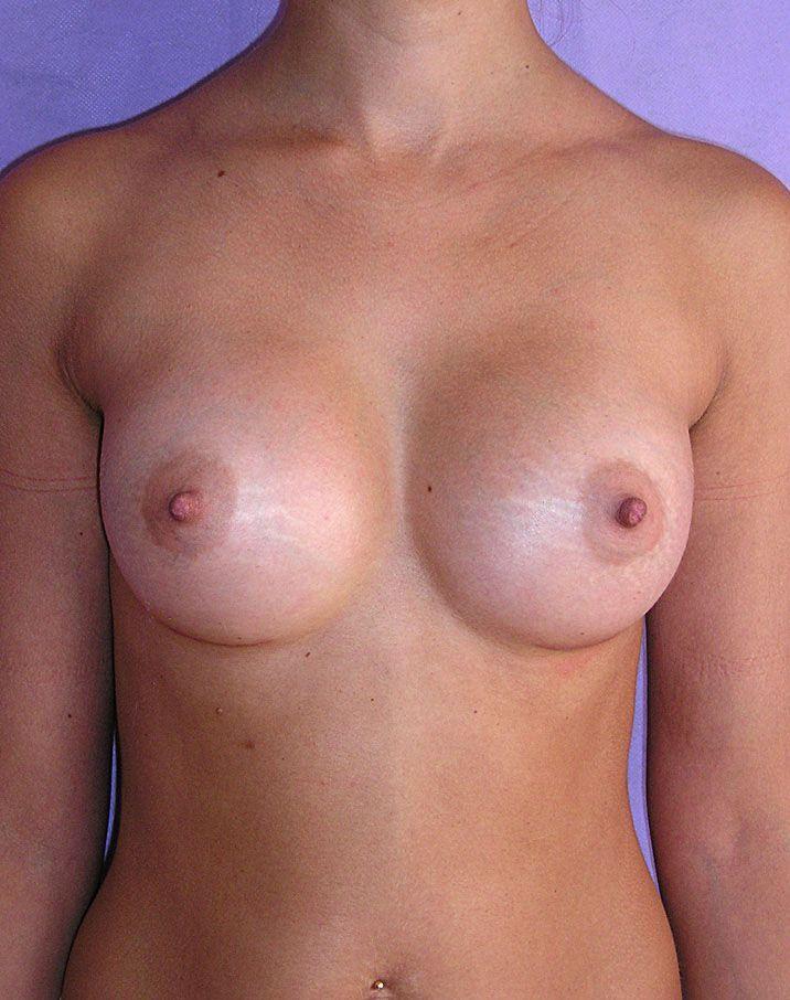 Случайно грудь известная русская 23 фотография