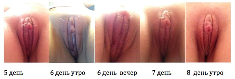 Снятие швов, 5-9 день после операции - Блог проекта OMORFIA