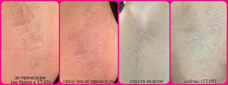 Сбривают ли волосы перед лазерной эпиляцией