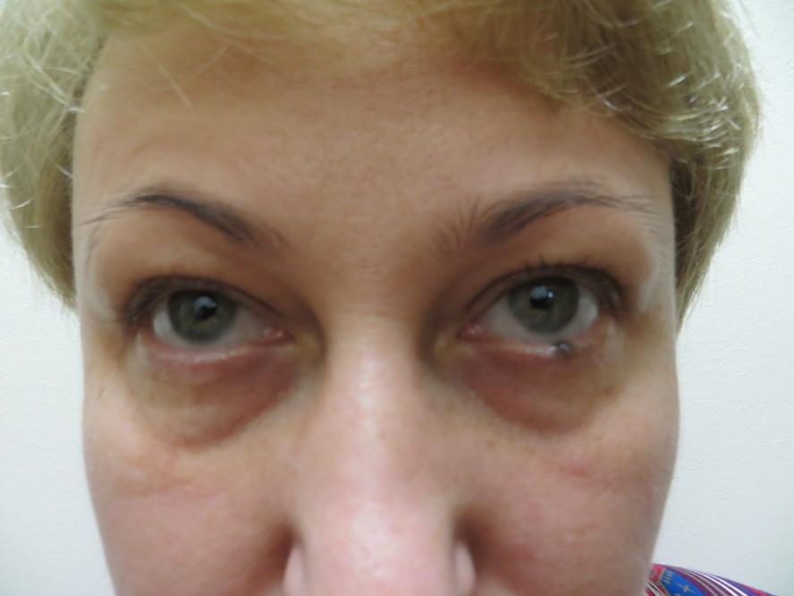 Самый эффективный крем для омоложения кожи лица