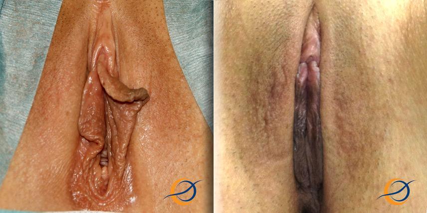 intimnaya-hirurgiya-uvelichenie-klitora