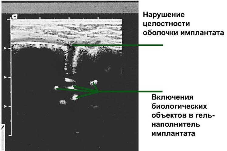 Капсулотомия фото