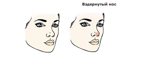 Как макияжем скрыть горбинку на носу
