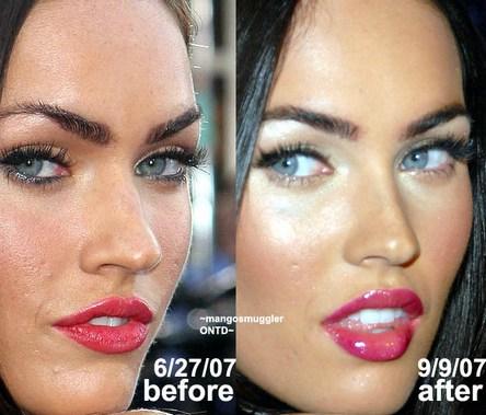 ботокс до и после фото в губы