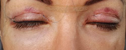снятие швов с глаза после операции