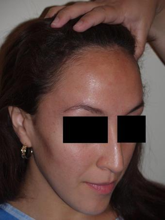 Как исправить линию роста волос на лбу