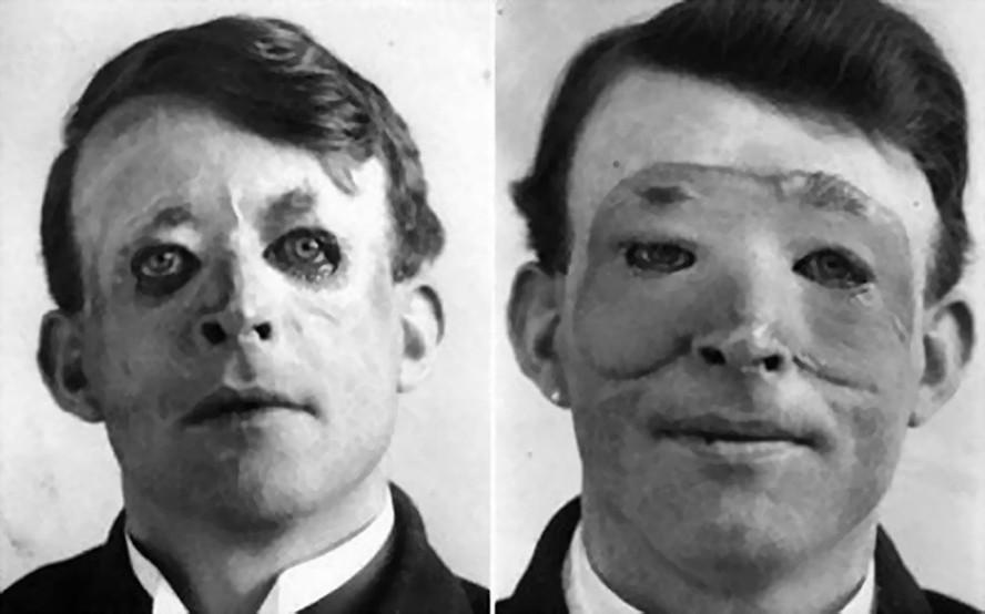 20 века пластическая хирургия фото пластическая хирургия во владивостоке отзывы