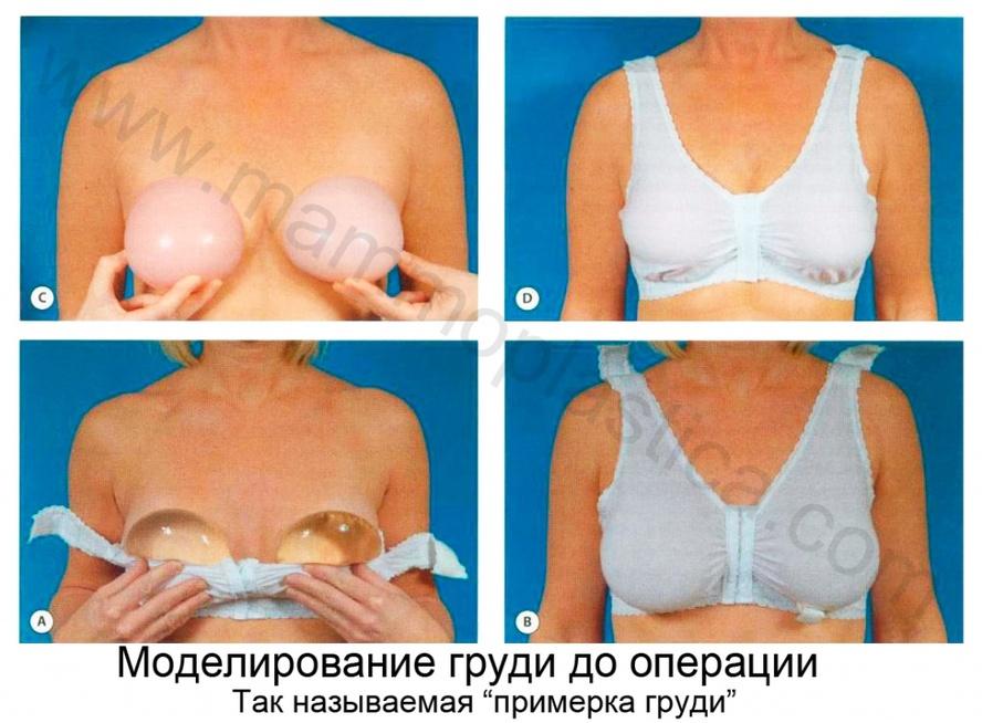 операция на грудь фото