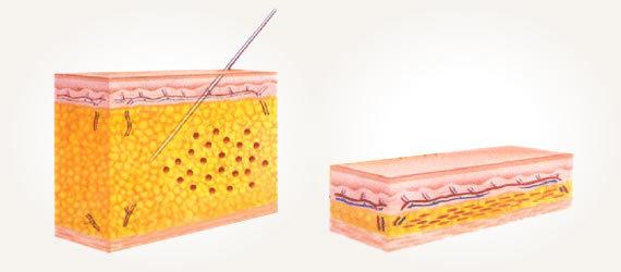Деревенская методика увеличения груди