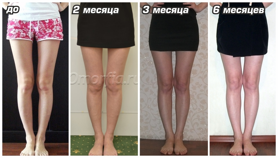 худеют ноги и руки