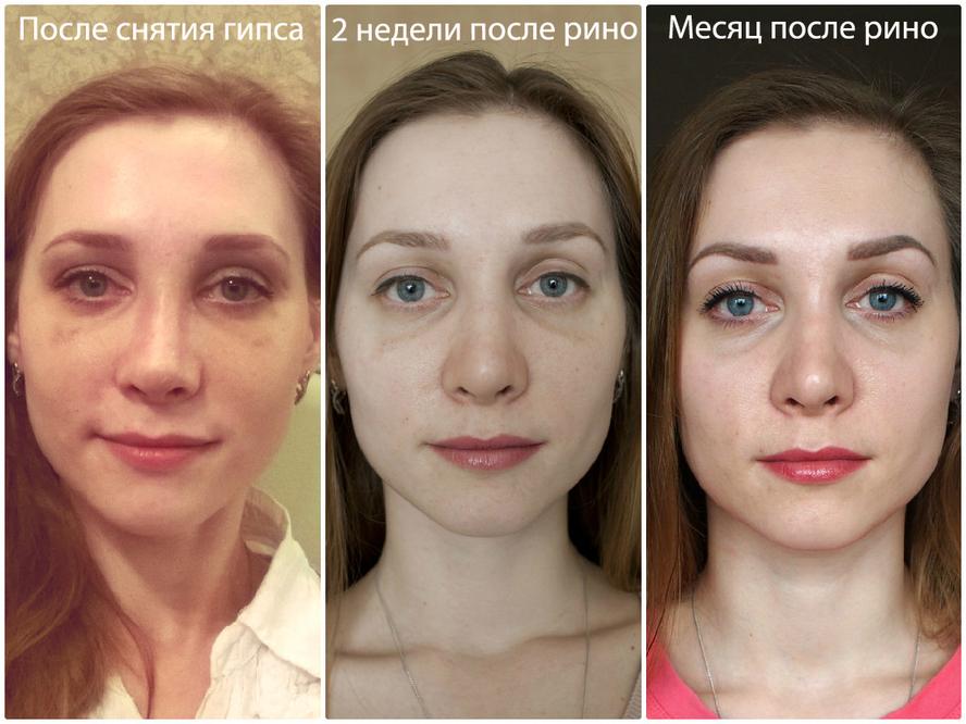 Услуги стоматологии в Астрахани