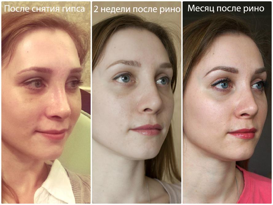 Ринопластика  Пластика носа  О ЧЁМ МОЛЧАТ СДЕЛАВШИЕ