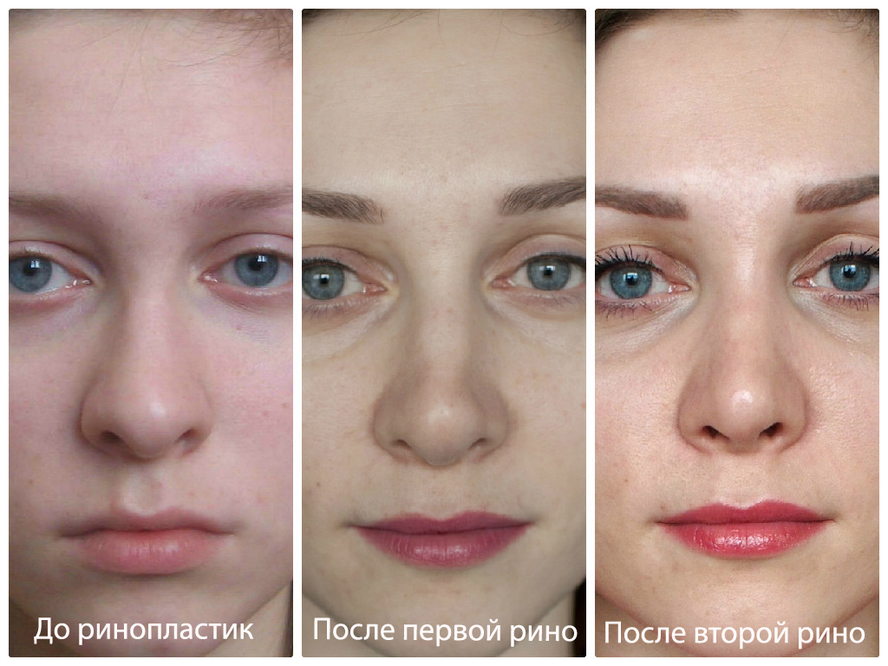белковая маска от морщин
